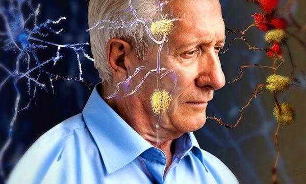Altération de l'irrigation vasculaire du cerveau